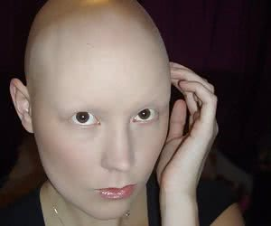 Category: bald female