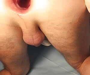 I love gay anal fisting gallery