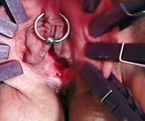 SHOCKING PAIN FREE PICTURE GALLERY