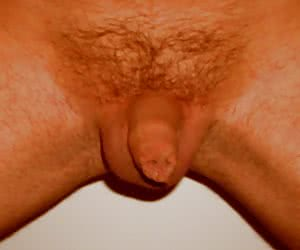 My very small penis series